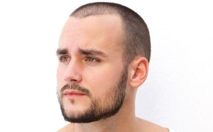 Thin_Facial_Hair_2