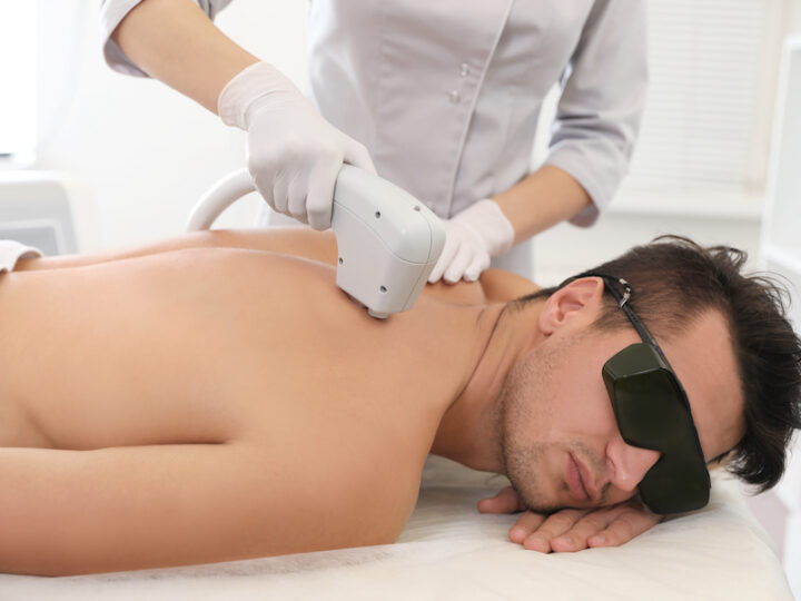 man back hair removal